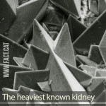 How heavy is the largest kidney stone ever discovered?